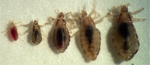 Head Lice.  Photo: John Clark, UMass