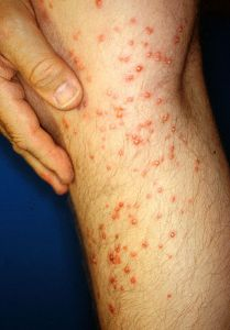 fire ant stings