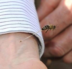 honeybee sting